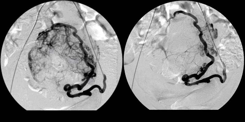 После эмболизации маточных артерий обильные месячные 33