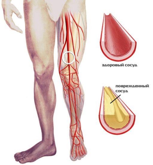 Артериальная сеть коленного сустава и её функциональное назначение