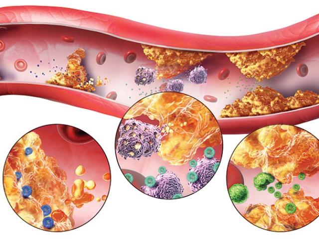 ateroskleroz i gipertoniya - Како да се проверат крвните садови на телото индикации за такви студии