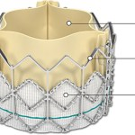 FDA Approves The Sapien Transcatheter Heart Valve For High Risk Patients