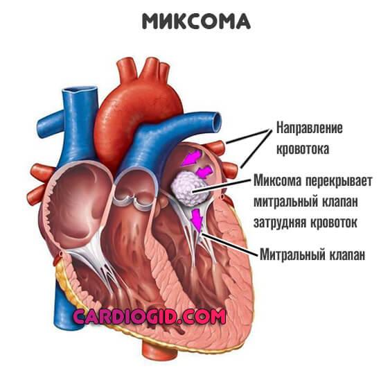 миксома