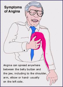 , Boli de inima – simptome