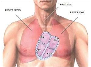 dextrocardia, Dextrocardia