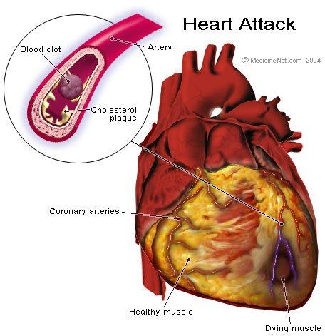 Infarto do miocárdio - fisiopatologia