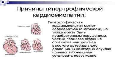 miokardo hipertrofija su hipertenzija)