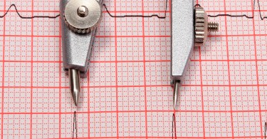 Electrocardiogram graph and calipers, ekg heart rhythm, medicine concept