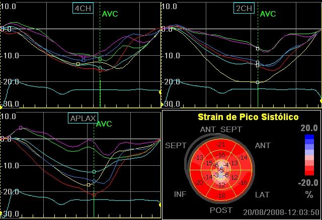 Curvas de Strain - Infarto Apical