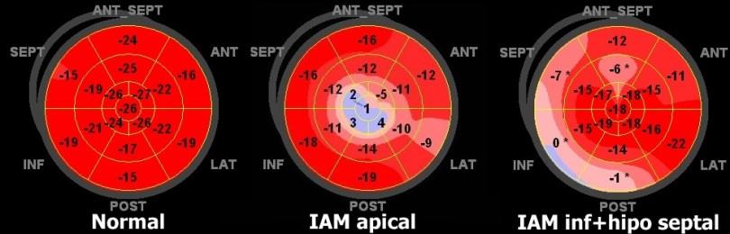Exemplos de Strain de Pico Sistólico - com representação em formato Bull's eye
