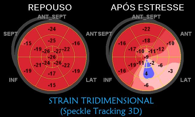 Strain Tridimensional obtido em repouso e após estresse