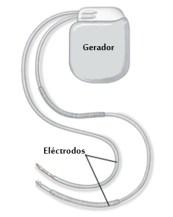 Cardio desfibrilador 2