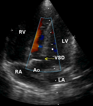 Apical five chamber view in Tetralogy of Fallot