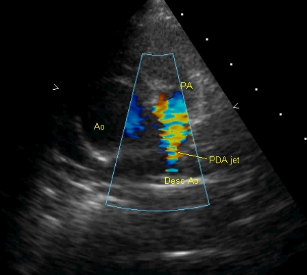 Patent ductus arerious jet in Tetralogy of Fallot on Colour Doppler imaging