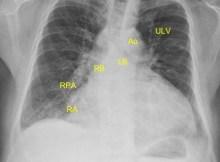 Cardiomegaly on CXR