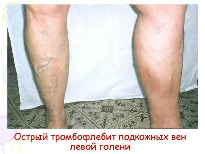 Mastita evalară la varicele testiculare la bărbați