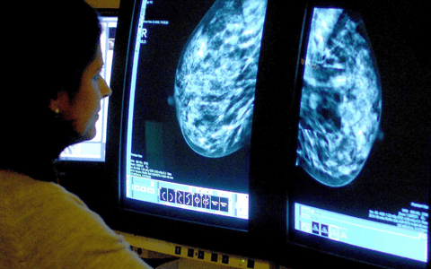 Possible negligence claim over care of breast cancer patient with mental health difficulties 10