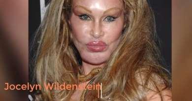 celebrity botox disaster