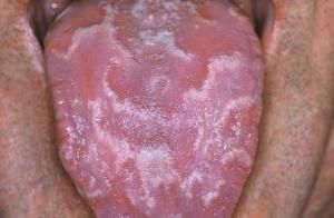 geographic tongue