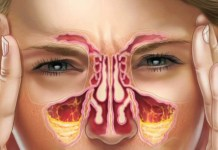 How To Get Rid Of A Sinus Infection, treatment of Sinus infection, symotoms and causes