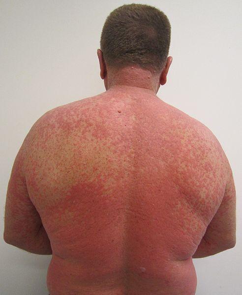 Allergic Reaction Mites Bites