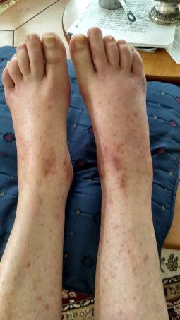 Feet Rash and Swelling