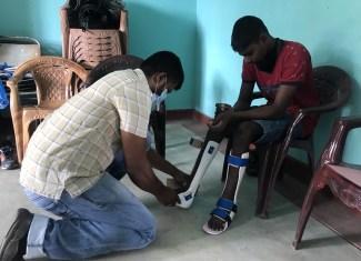 Measurement taken for new Prosthetic devices at Batticaloa.
