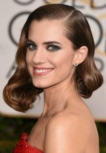 Allison-Williams-2015-Golden-Globes-bad-makeup-hair