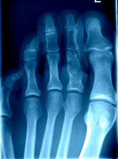 fractura patológica segunda falange (encondroma)