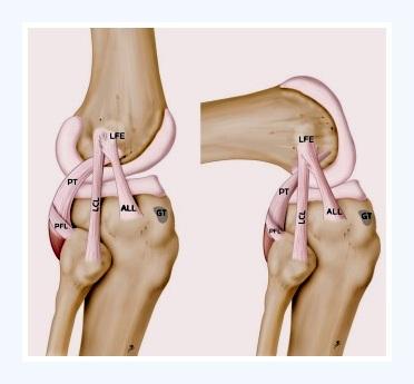 ALL: Ligamento anterolateral de la rodilla
