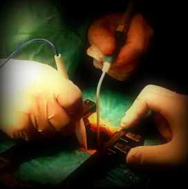estenosis cirugia lumbar fisioterapia