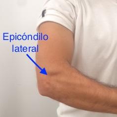 Dolor de codo en la epicondilalgia lateral