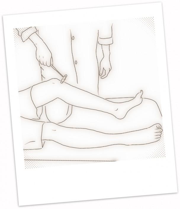 examen neurologico reflejos osteon fisioterapioa carlos lopez cubas