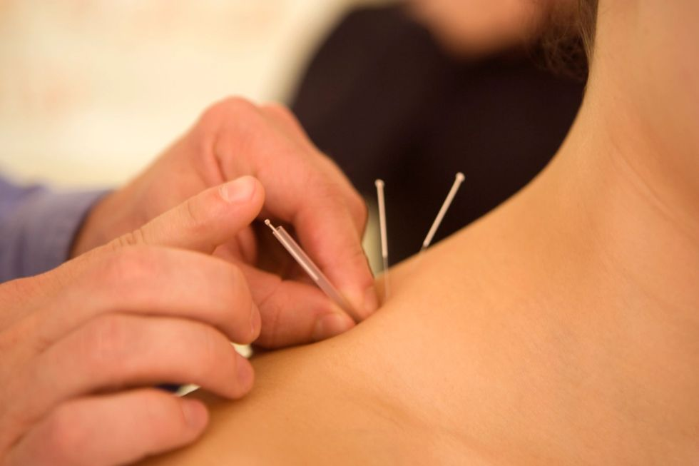 East West Acupuncture and Psychotherapy