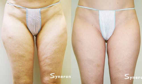 Before and after slender less discolored and freckled legs of a woman