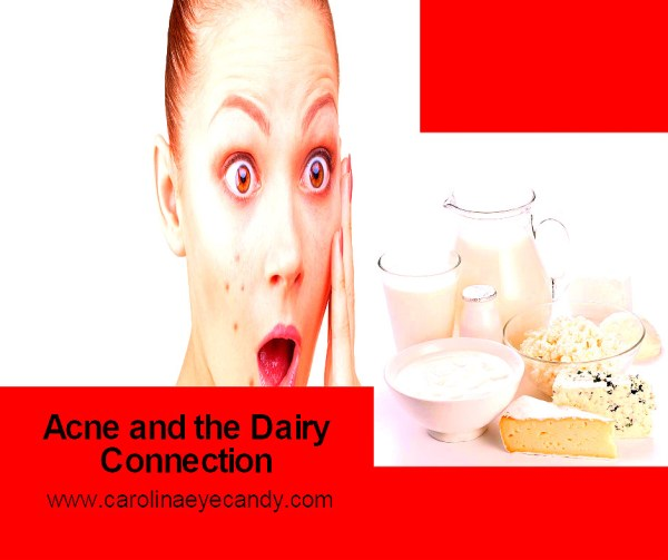 acne and dairy