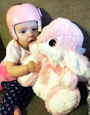 Baby and Easter bunny plagiocephaly