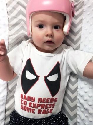 Baby Deadpool onesie plagiocephaly