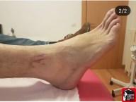 kinesio taping lesiones del corredor paula bueno (13) (Copy)