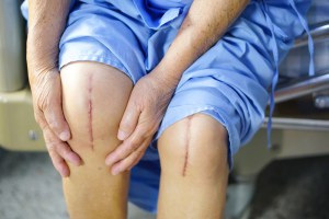 knees with scars from knee surgery