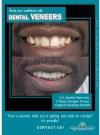 3 Reasons To Invest In Veneers And Upgrade Your Smile Cartagena English - Pesta English, Pesta Perdana 12 Promo English Youtube