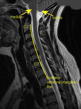 MRI T2 sagittal