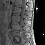 Lumbar MRI T1 sagittal with contrast