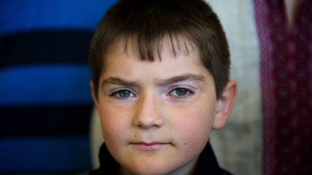 Foto em primeiro plano de Dennis, criança ucraniana de 9 anos com câncer