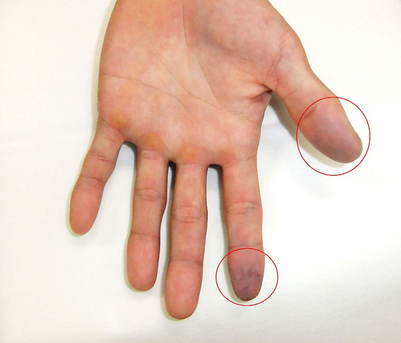 Acute Idiopathic Blue Fingers A Young Man With Achenbach S Syndrome