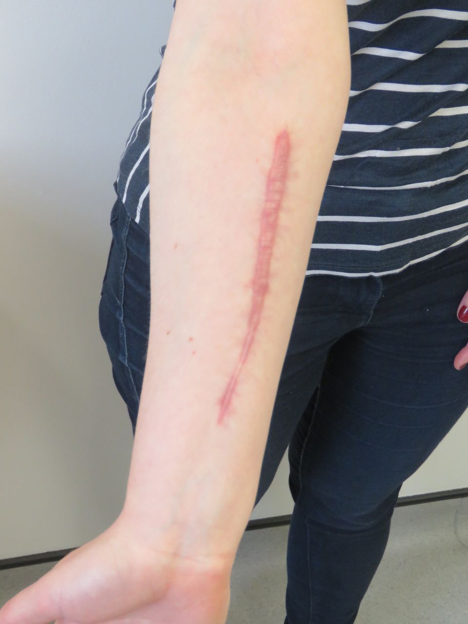 Self Harm Scar Revision