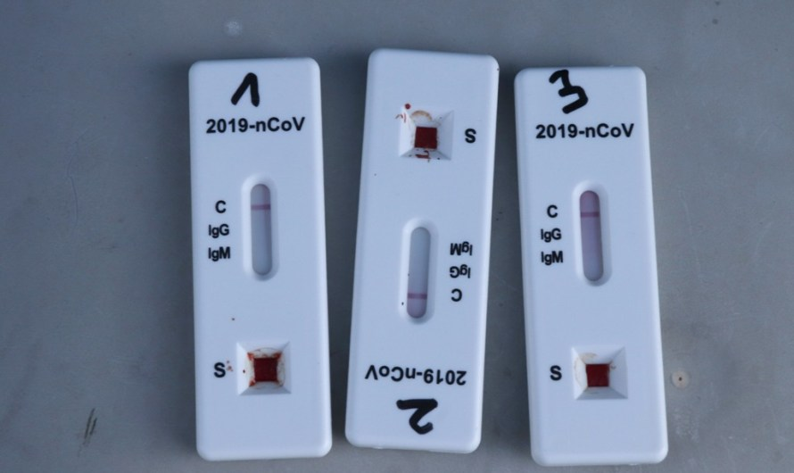 Els tests antígens ja es poden comprar a les farmàcies
