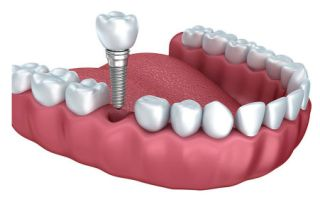 dental implants castle rock co