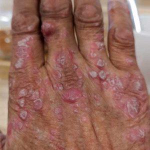 psoriasis1