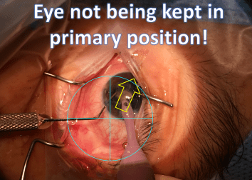 eye not in primary