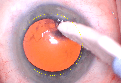 Lasik flap edge cataract