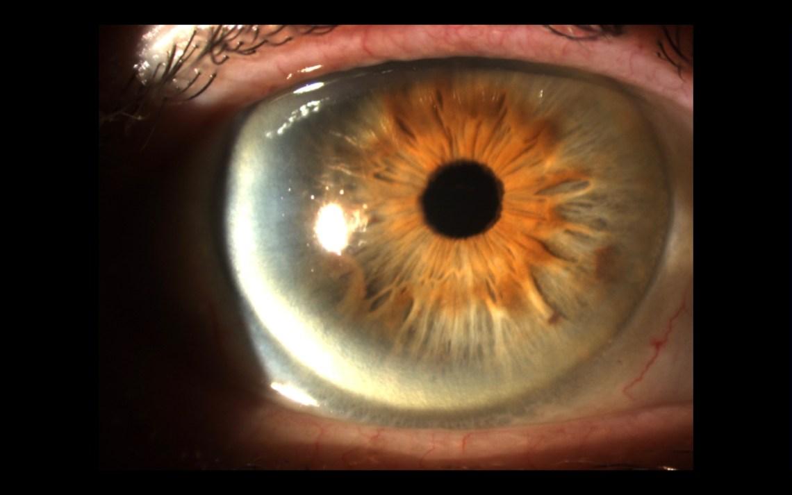 Cataract Coach